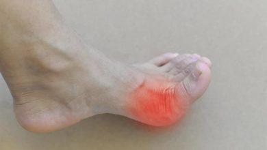 Photo of النقرس – الأسباب والأعراض وطرق العلاج