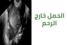 Photo of علامات حدوث الحمل خارج الرحم