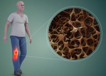 كيفية الوقاية من الاصابة بهشاشة العظام