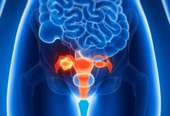وجع المبايض: الأسباب المحتملة والتشخيص وطرق العلاج