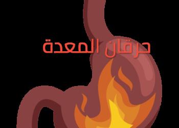 حرقان-المعدة-الحموضه-الأعراض-والأسباب-والعلاج-والوقاية