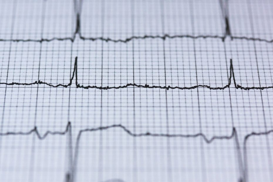 اجلس أقل وامش أكثر نصيحة من الأطباء لصحة القلب