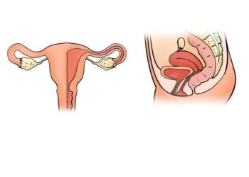 أعراض الأورام الليفية الرحمية