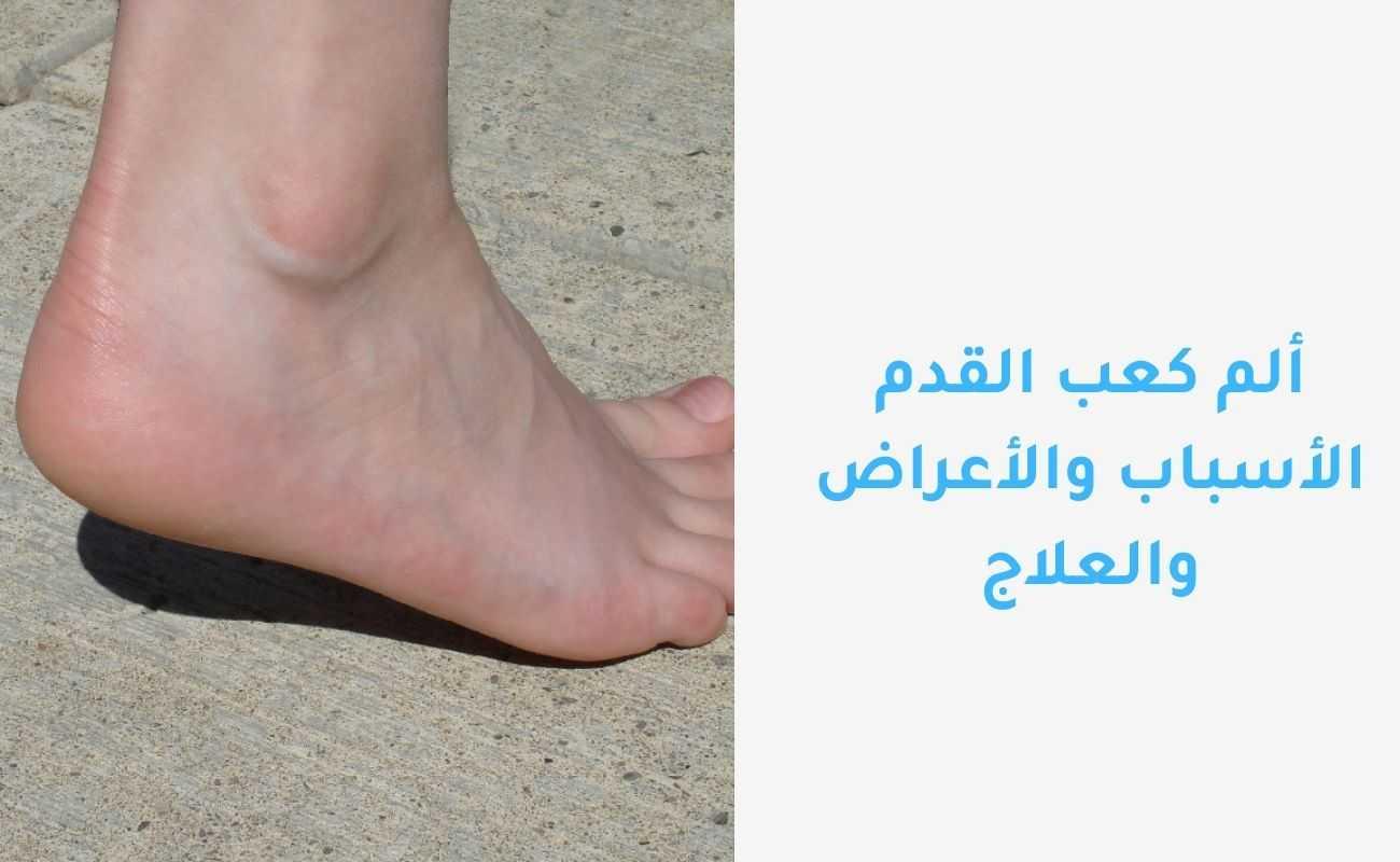 ألم كعب القدم الأسباب والأعراض والعلاج